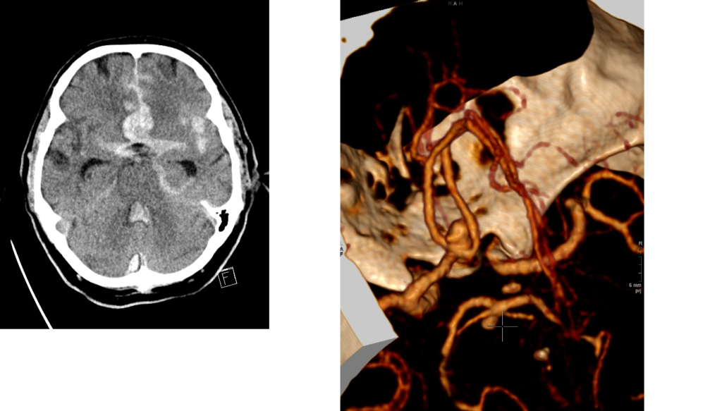 MRI scanns from an aneurysmatic subarachnoid haemorrhage with blood in pentagon.