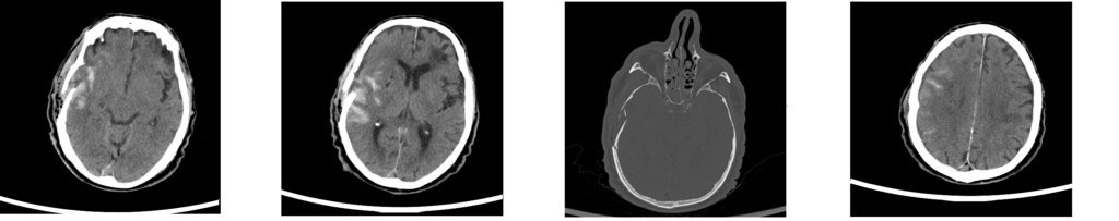 MRI scanns from a patient with a severe traumatic brain injury