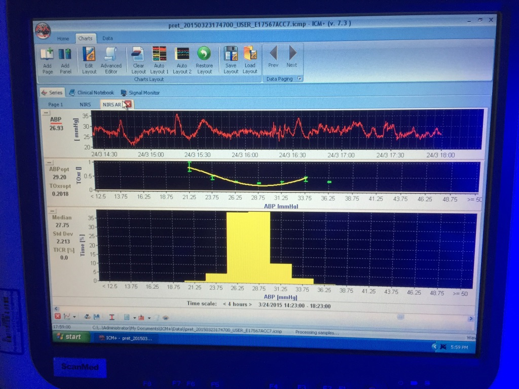 Cotside monitoring screen showing the time trend line for the arterial blood pressure (ABP) and the ABP-TOHRx error bar with fitted (U shape) curve
