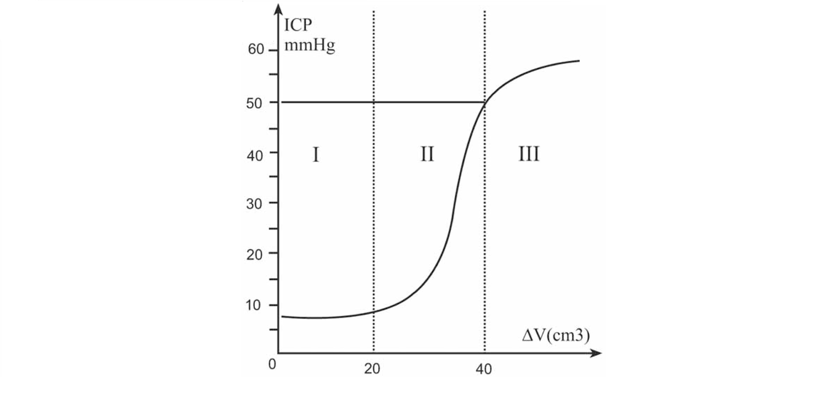 Pressure-Volume curve showing the intracererbal volume changes and the corresponding intracranial pressure (ICP) changes